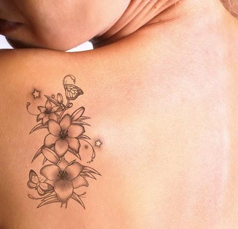 Rimozione Tatuaggi e Macchie